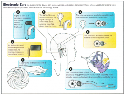 Vestibular Prosthesis