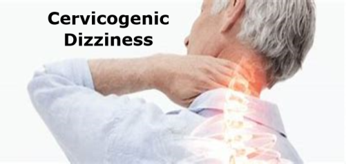 Cervicogenic Dizziness image 3