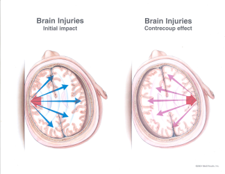 Concussion Traumatic Brain Injury TBI